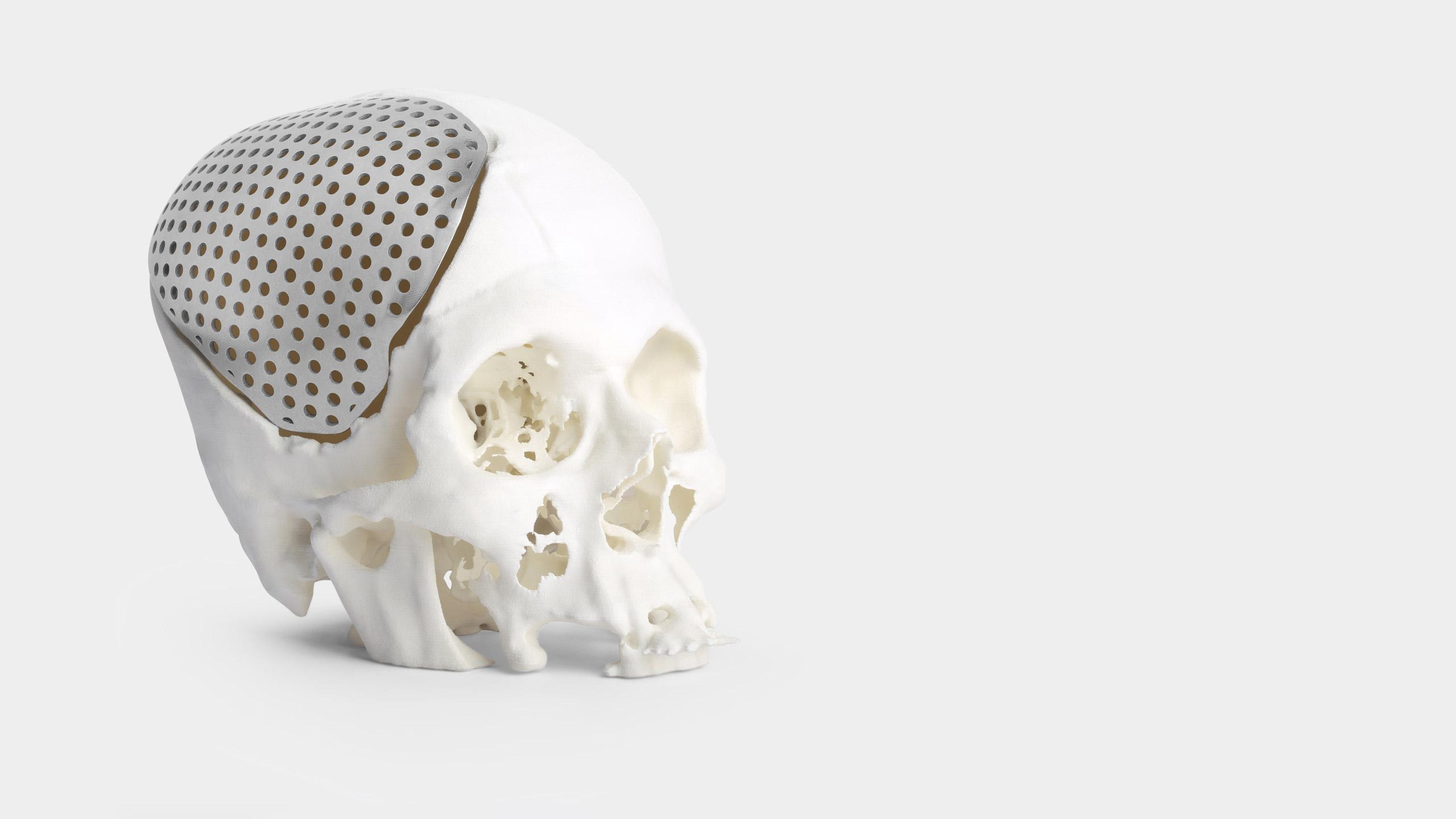 3D printed cranial implant skull