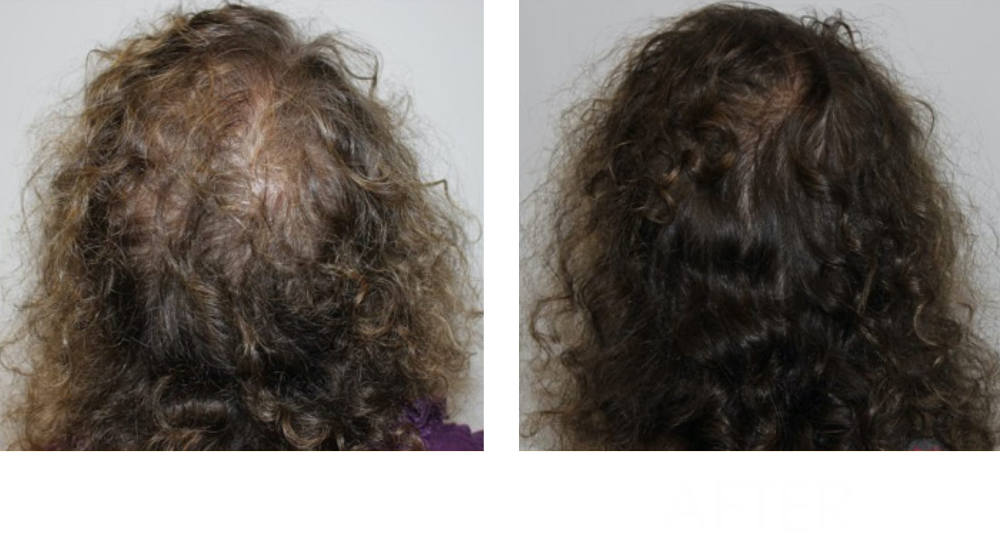keravive before and after
