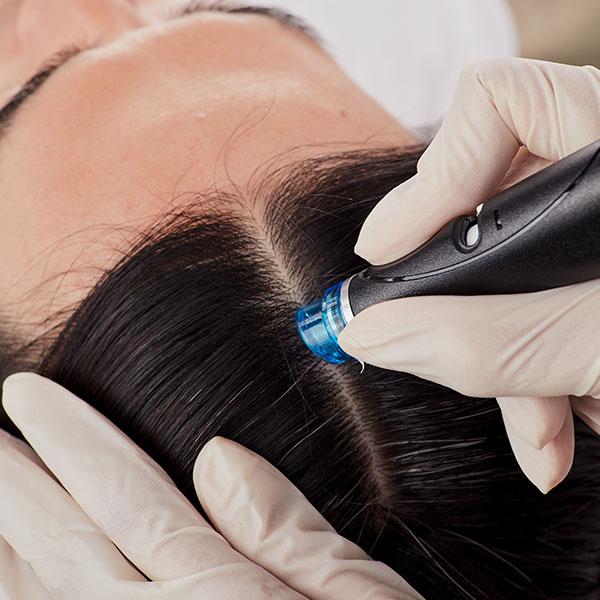 keravive hairline