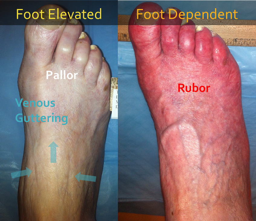 shiny skin on feet