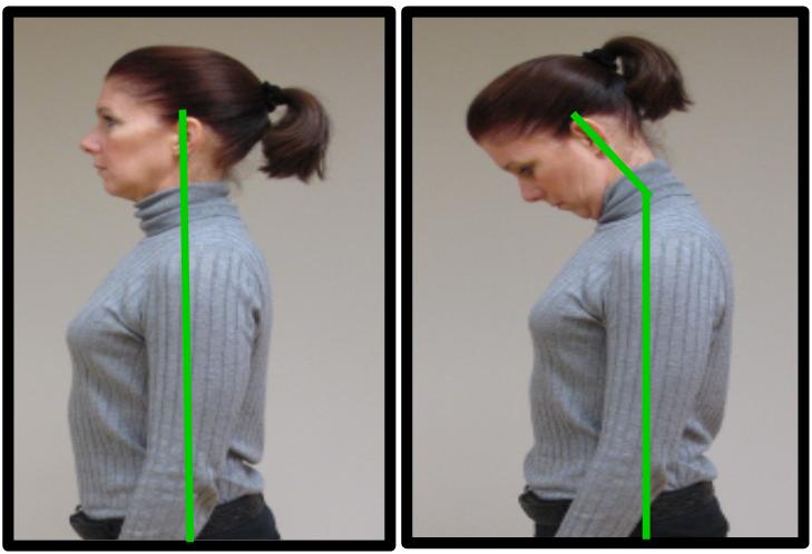 proper neck posture