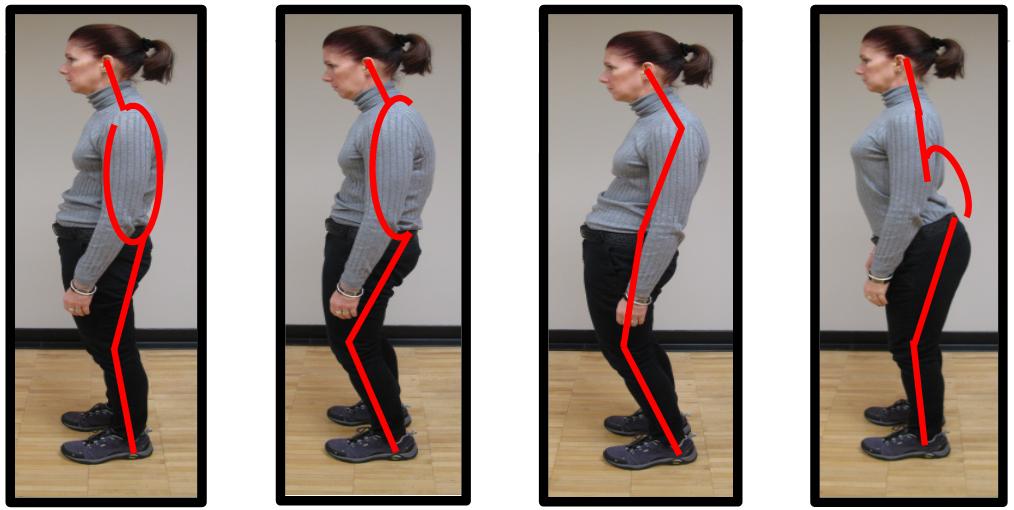 bad core posture