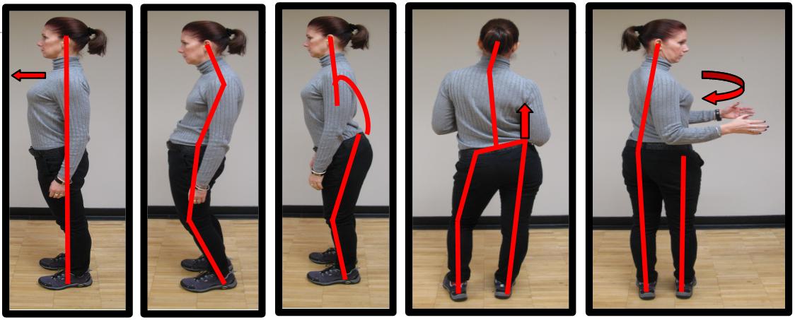 bad lower back posture