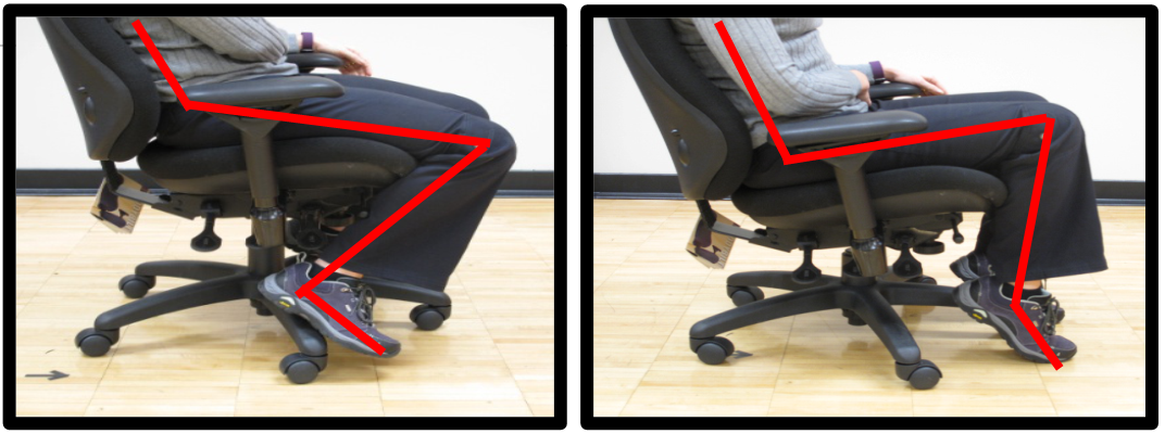 bad knee posture