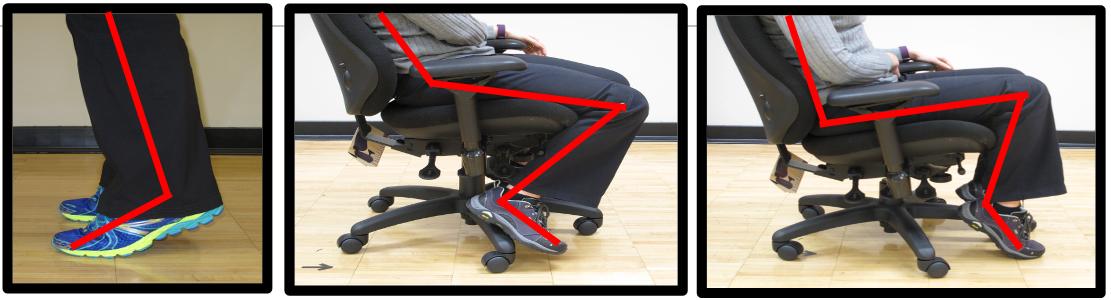 bad foot posture