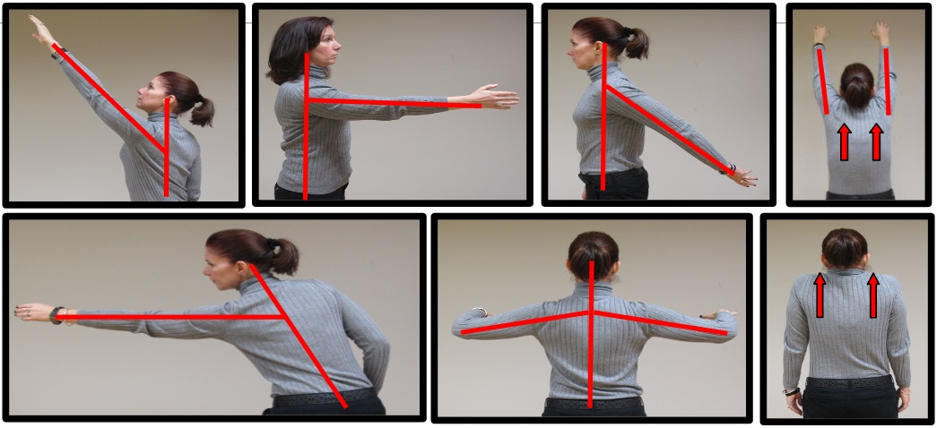 bad shoulder posture