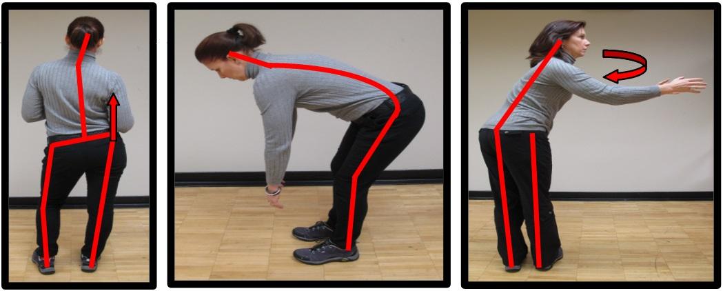 bad hip posture