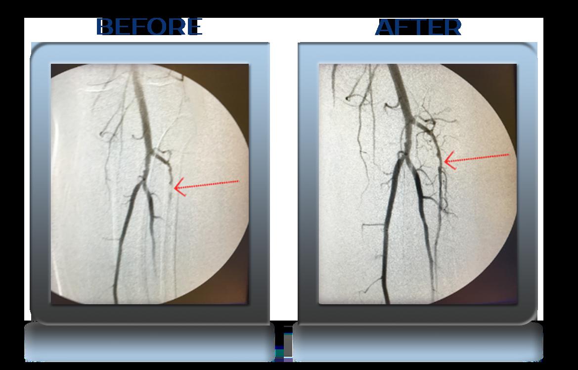 Anterior Tibial Artery Recanalization