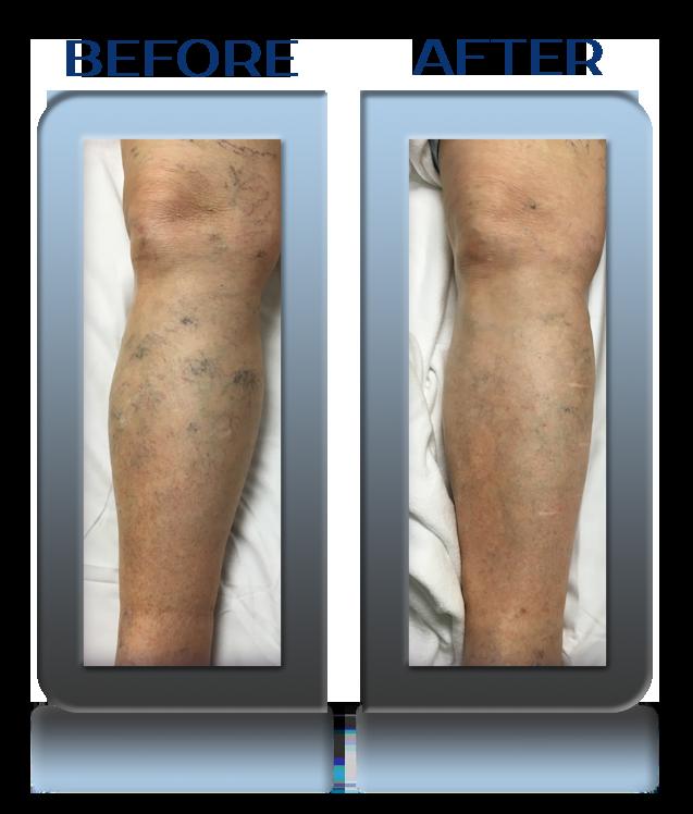 Pelvic Vein Angioplasty & Stenting