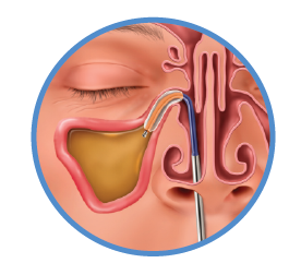 Balloon Sinuplasty Procedure