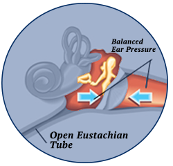 Relief of Pressure Buildup, Eustachian Tube Dysfunction