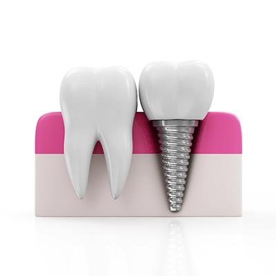 Dental Implants Chandler