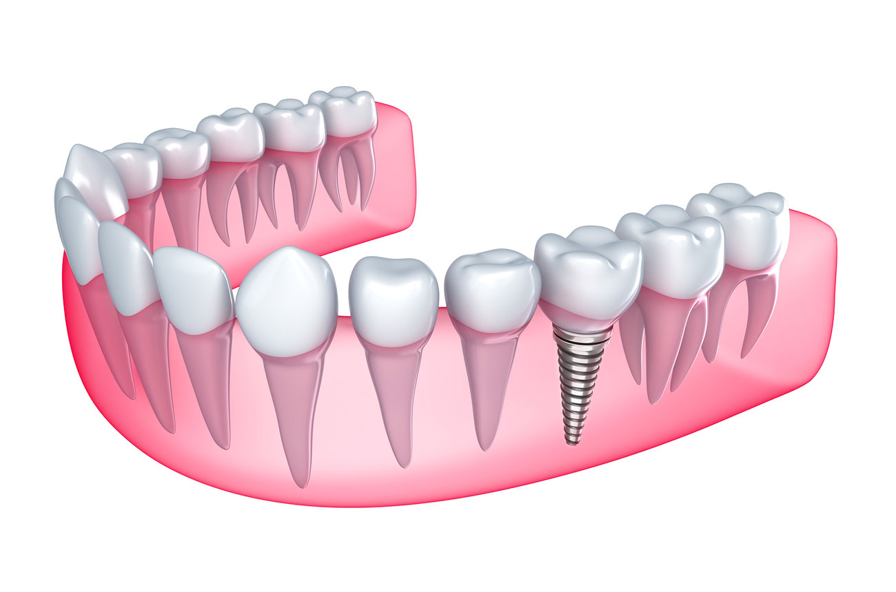 Affordable Dental Implants In Atherton