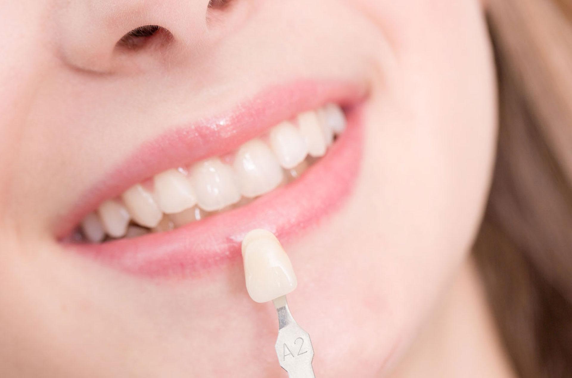 Dental Crowns & Bridges In Atherton
