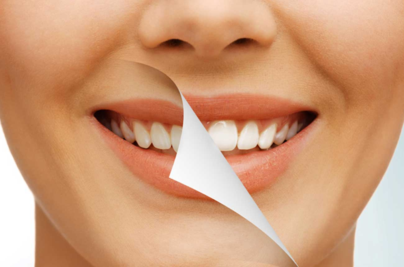 Cosmetic Dentistry In Atherton