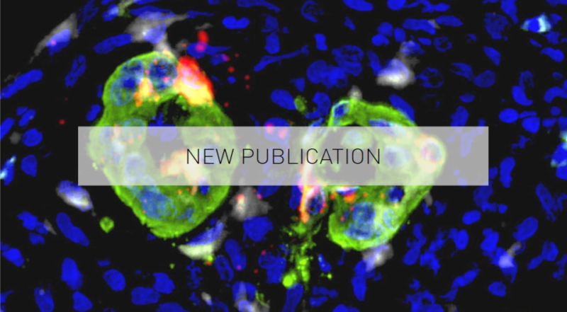 New Publication about TNF-α Expression in Invasive Cancer Cells