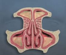 Endoscopic Sinus Surgery - Sinus Disease