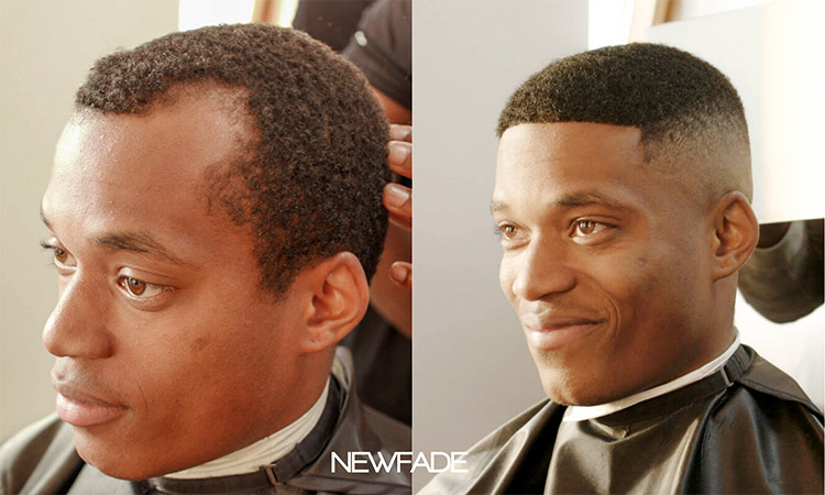 NewFade before and after