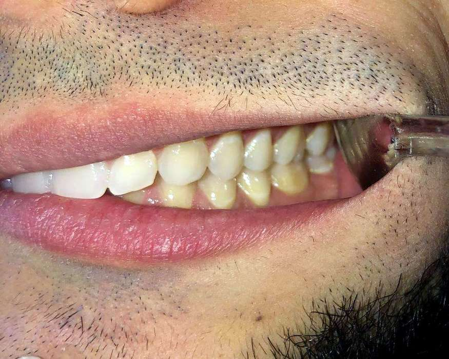 For the second and third photos, stay in the same bite as the first picture, but this time you can use your fingers or a medium size spoon to retract one cheek all the way back and with your free hand, take a side shot of your teeth. Repeat for the opposite side.