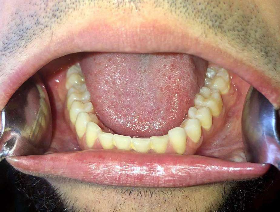 For the fifth and last photo, hold your head down, open as wide as you can, then take a snapshot of your lower teeth arch.