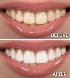 Teeth Whitening Services New Britain Ct Laser Teeth Whitening