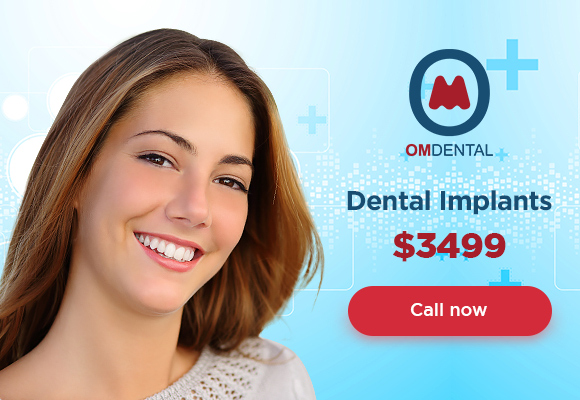 Dental implants for 3499 at Om Dental