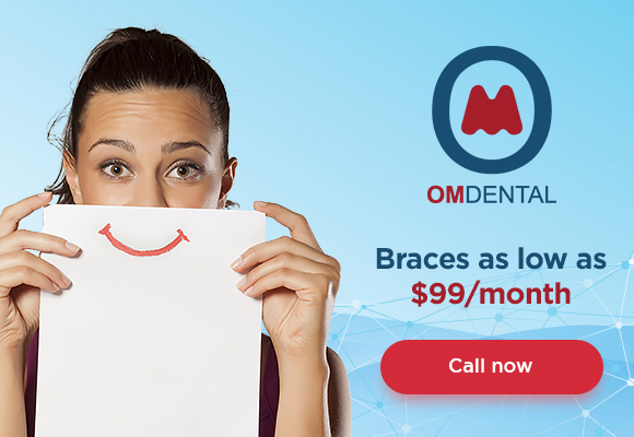 Dental braces for 99 at Om Dental