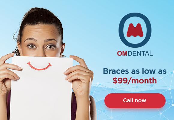 Dental braces for 99 at Om Dental