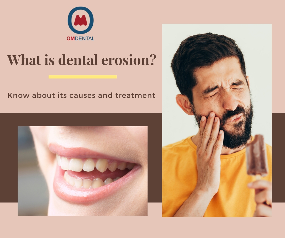 Dental erosion, its causes, and treatment