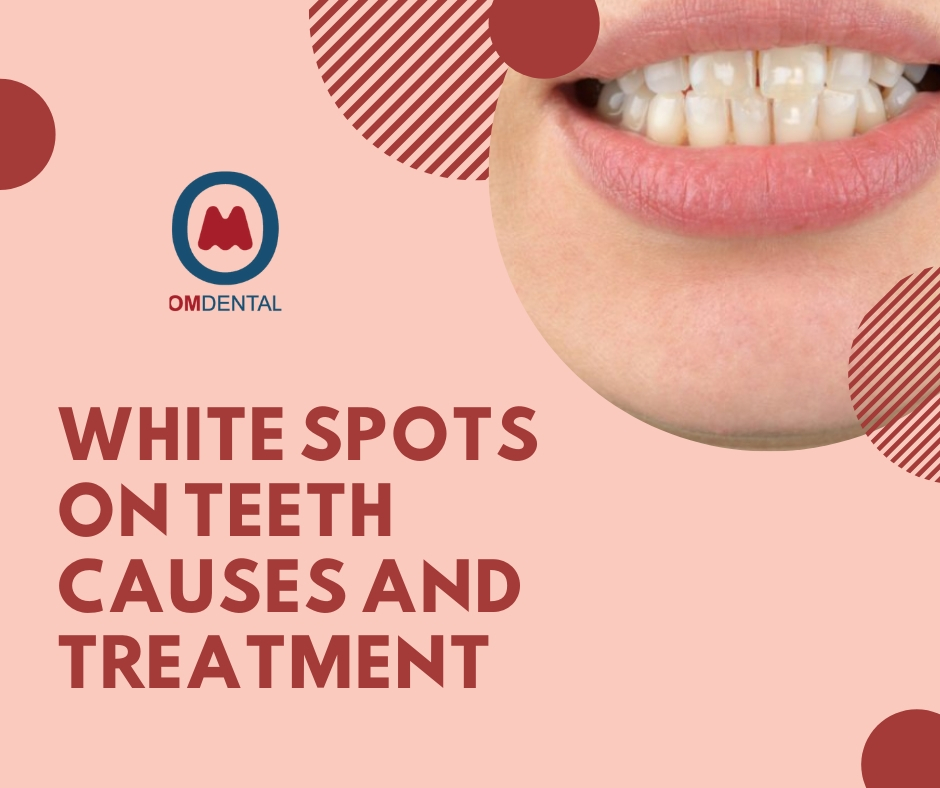 White Spot on teeth causes and treatment