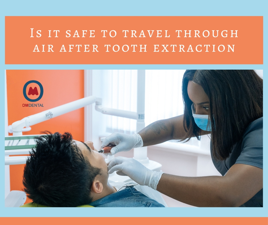 Is It Safe To Travel Through Air After Tooth Extraction