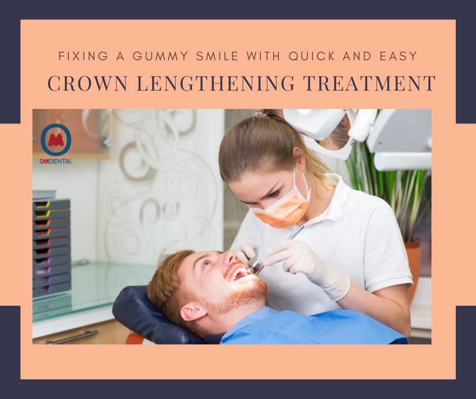 Fixing gummy smile with quick and easy Crown Lengthening treatment
