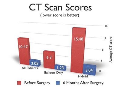 CT Scan Scores Chart