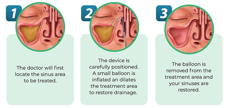 Balloon Sinus Dilation procedure steps