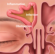 Sinus Infection Diagram