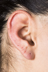 Repair of Earring Hole, Earlobe
