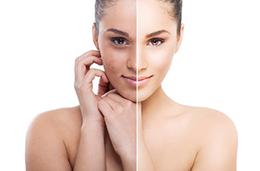 Facial Skin Peel