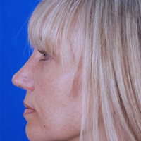Rhinoplasty Patient After