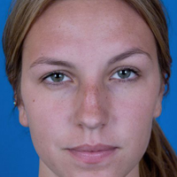 Rhinoplasty Patient, Woman, Before