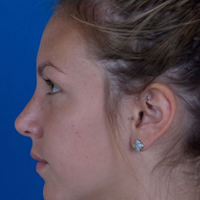 Right Profile, Rhinoplasty After