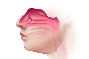 Nasal obstruction from polyps