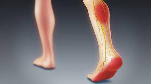 Foot Pain Tampa Bay