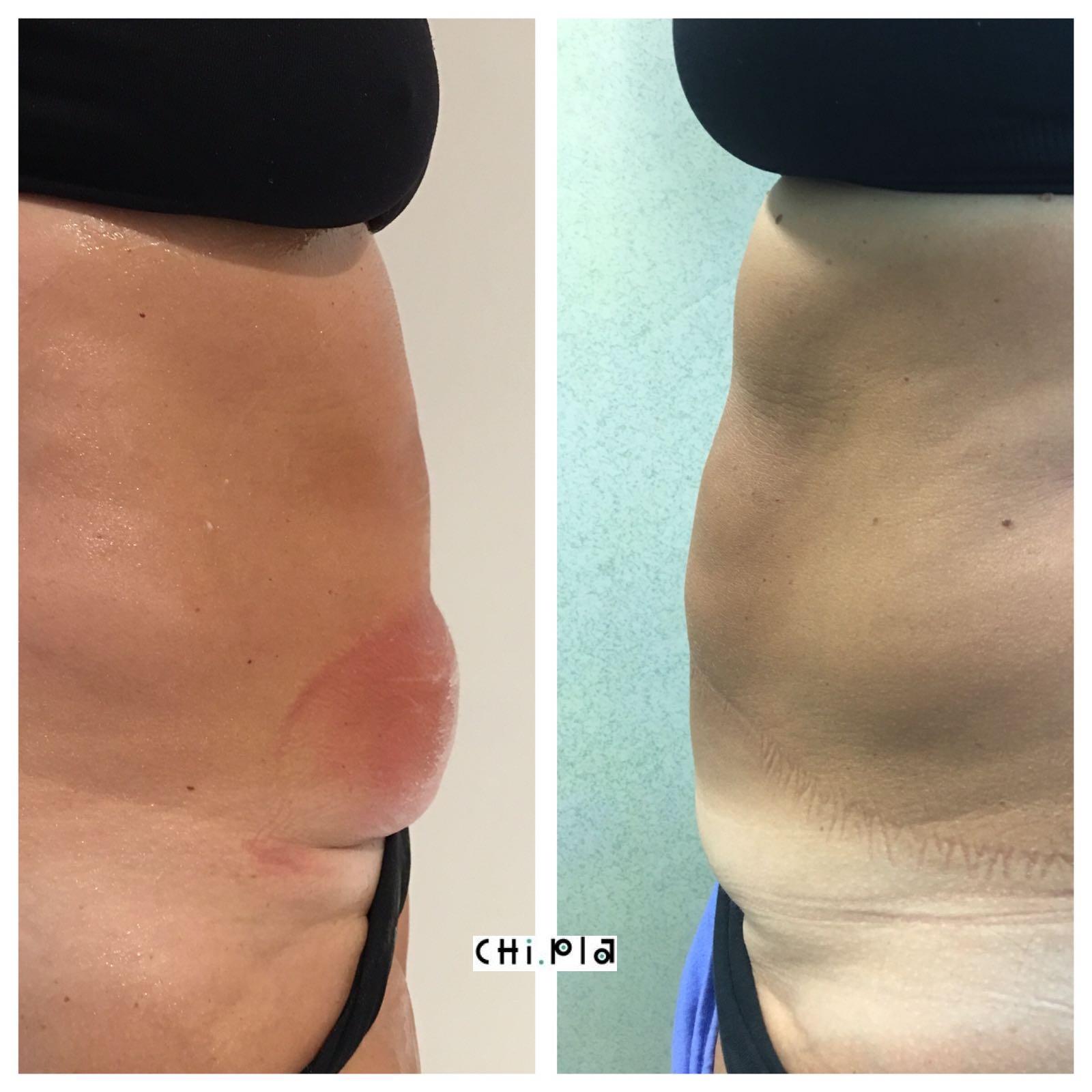 """Criolipolisi, una rivoluzione nel trattamento del grasso localizzato """"Evidence Based"""""""