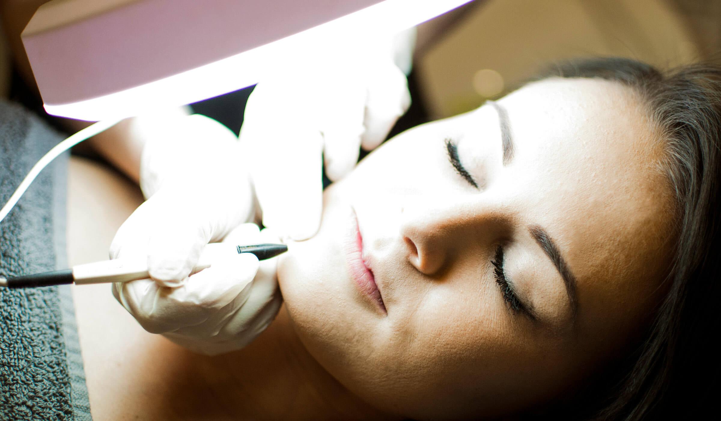 photo of electrolysis treatment
