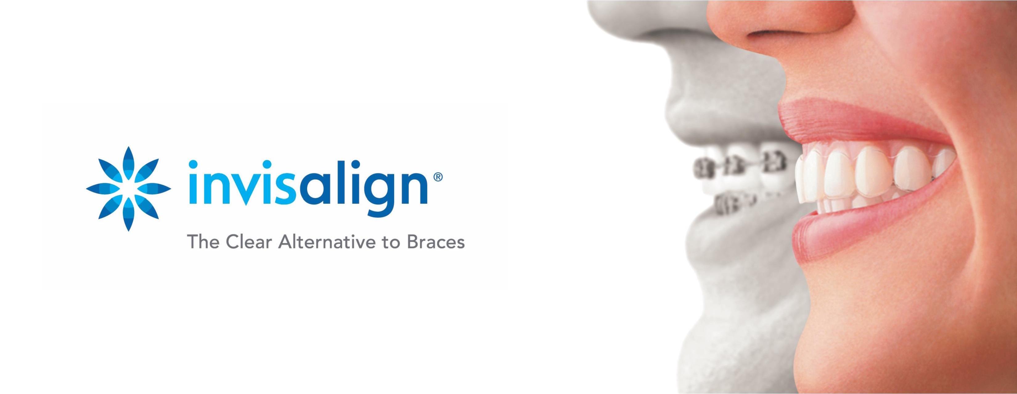 Invisalign Smile Dental Clinic