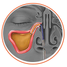 Graphic diagram of instrument placement in the sinus for balloon sinus dilation.
