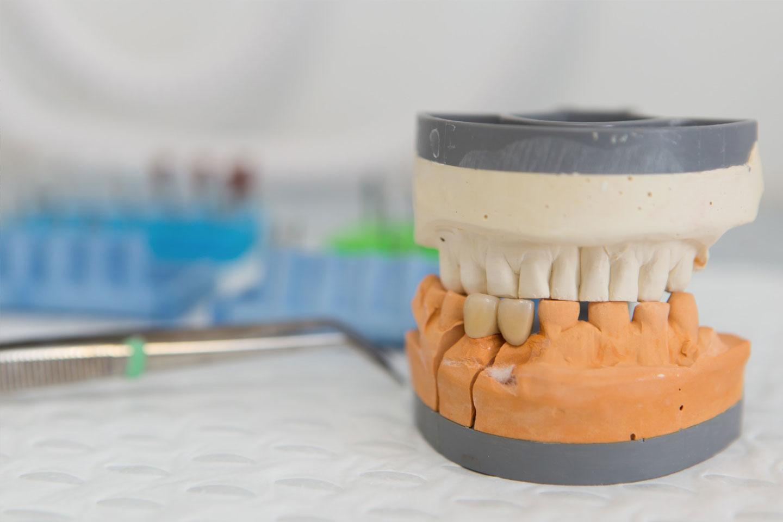 Dental Services Mandurah