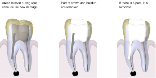 Root Canal ReTreatments