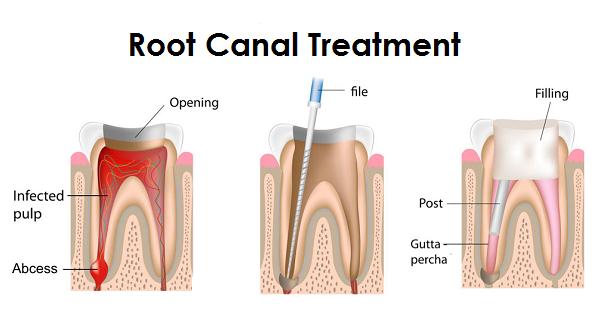 Root Canal Treatment Mandurah