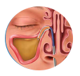 Solving Sinusitis - Balloon Sinus Dilation Process - Step 2: Dilate the blocked passage